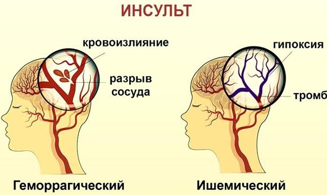 Рейтинг реабилитационных центров после инсульта в Нижнем Новгороде с учетом их достоинств и недостатков