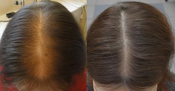 Рейтинг лучших средств для роста и густоты бороды. Выбор лучшего препарата.
